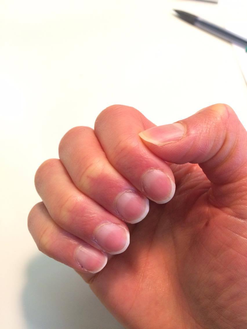 zdrowe-paznokcie